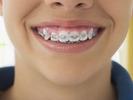 Aparato fijo o removible para los dientes de los niños