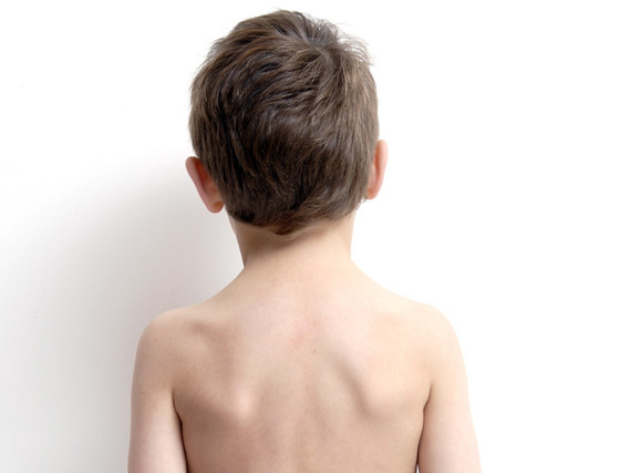 Qué hacer si a mi hijo le duele la espalda